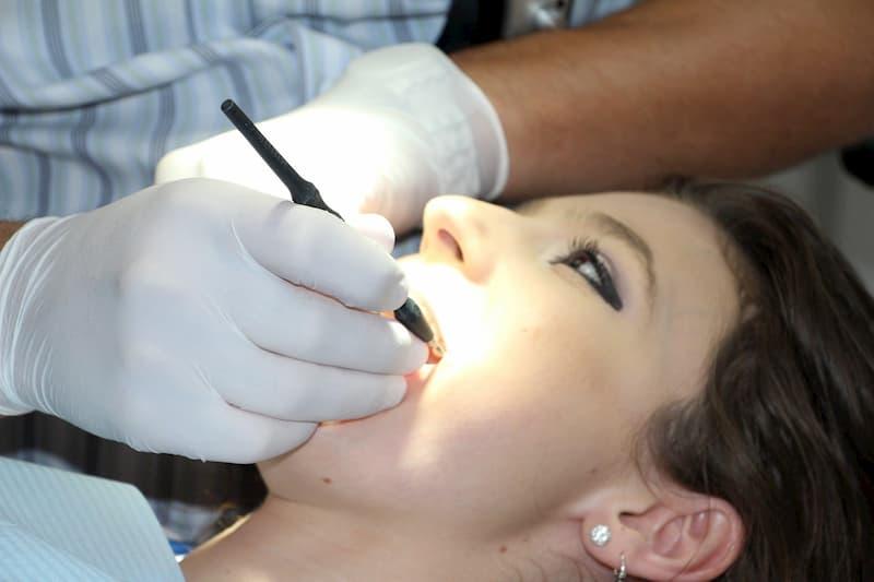 As Lentes De Contato Dentárias